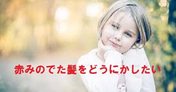 外国の子供の地毛のような赤みの無い髪色になりたい