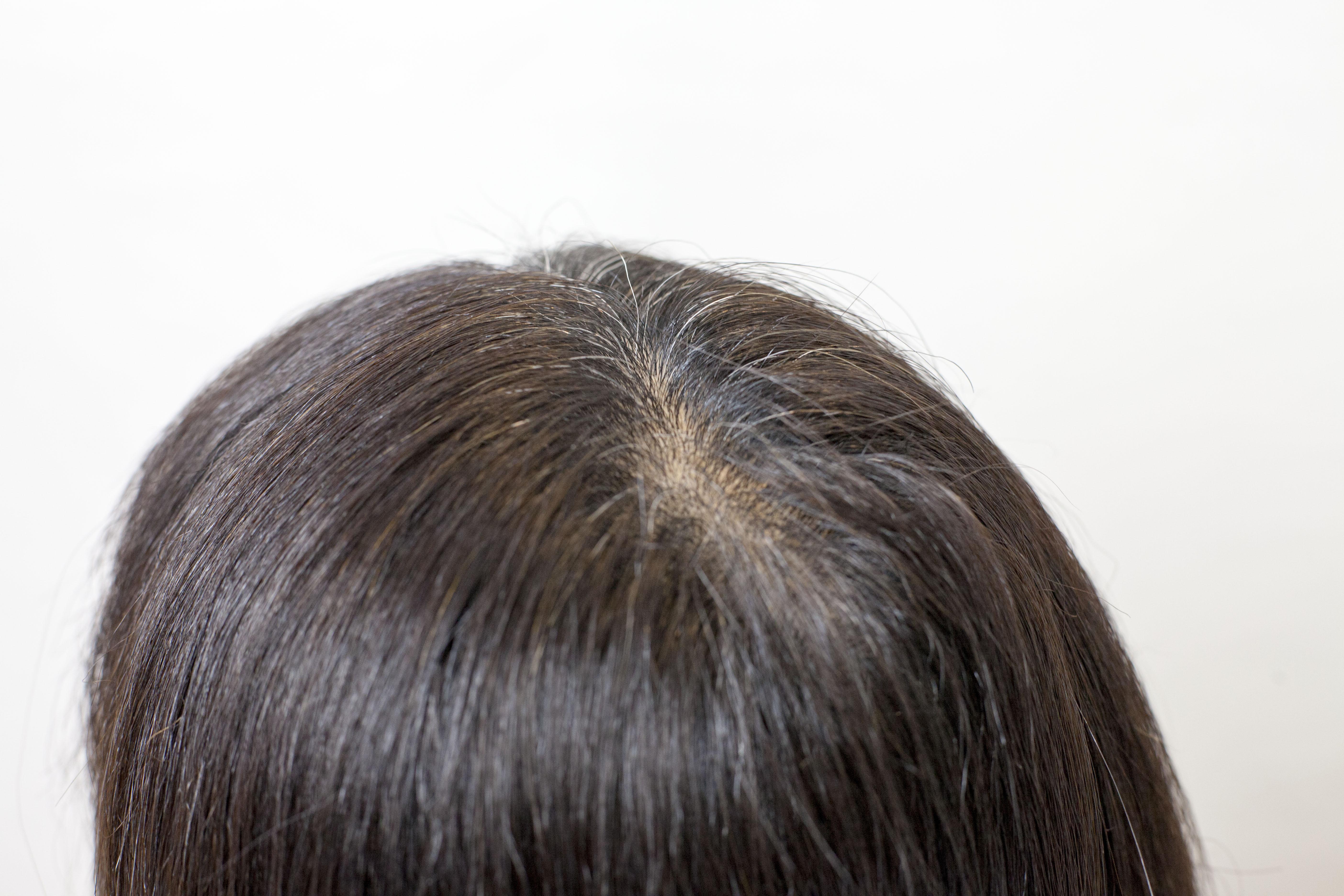 根元の白毛の状態